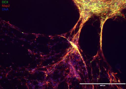 bmg-neurons